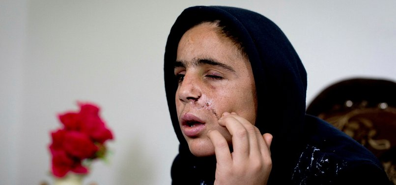 INJURED PALESTINE TEEN RECALLS DETENTION, INTERROGATION