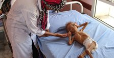 UN aid chief: Fight against famine is being lost in Yemen