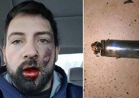 Elektronik sigara suratında patladı yedi dişini kaybetti