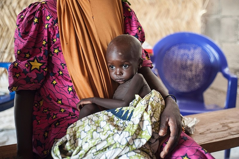 A young girl suffering from malnutrition sitting on her mother's lap, in the Muna informal settlement, which houses nearly 16,000 internally displaced people, northeastern Nigeria, 30 June, 2016. (AFP Photo)
