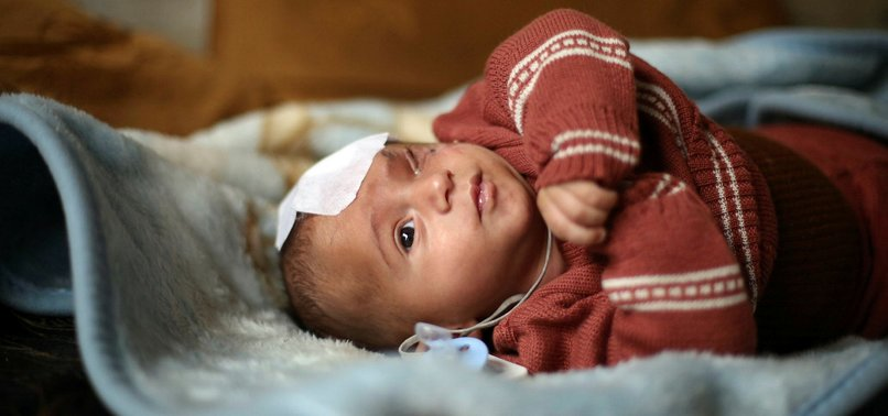 SYRIAN 'BABY KARIM' -SYMBOL OF RESISTANCE- COULD LOSE OTHER EYE TOO