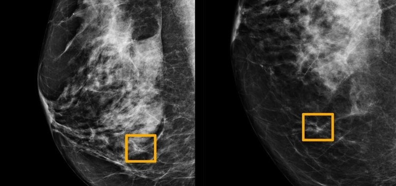 AI CAN DETECT BREAST CANCER MISSED BY DOCTORS, STUDY SHOWS