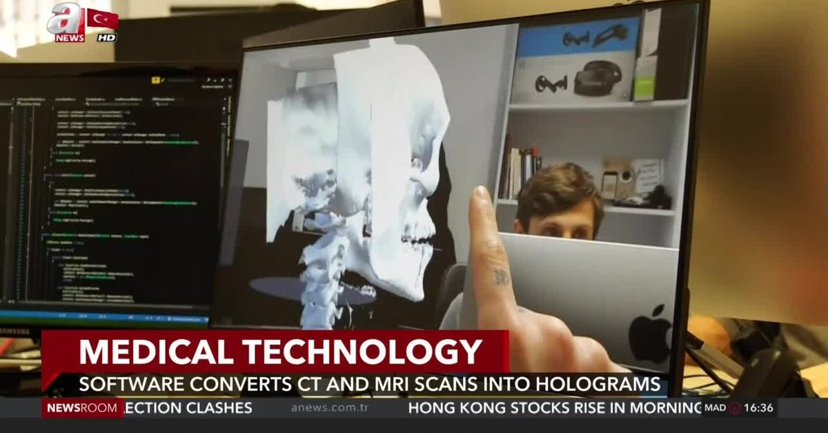 Software converts CT and MRI scans into holograms - anews