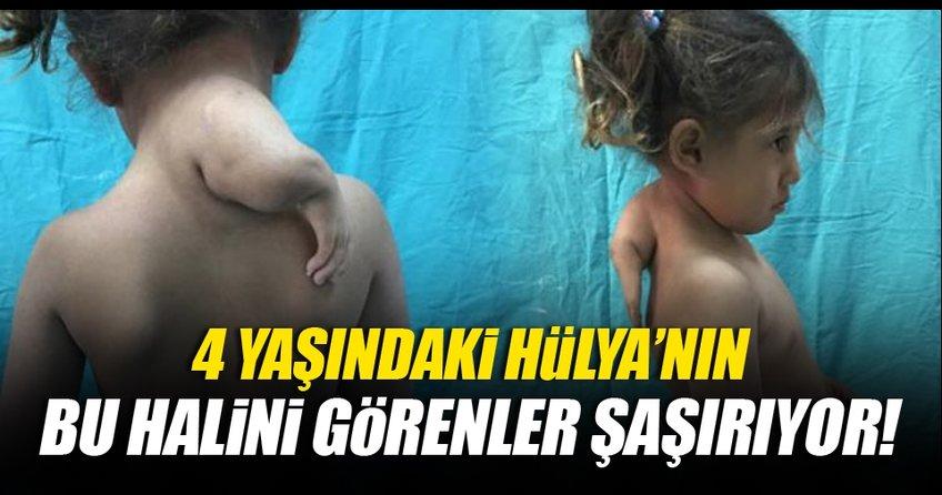 4 yaşındaki Hülya'nın 3'üncü kolu alındı