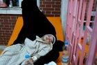 Yemen insani krizin eşiğine geldi