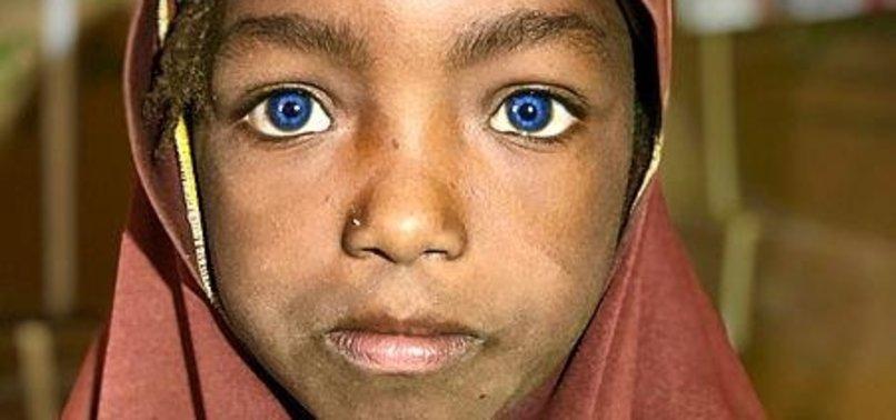 TURKISH AID GROUP IHH HELPS NIGERIEN GIRL AT RISK OF LOSING EYESIGHT