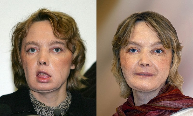 This combination of pictures (dated, (L) February 6, 2006 and (R)from November 2006) of French Isabelle Dinoire, 39, a few months after her surgery operation (AFP Photo)
