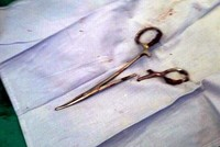 Scissors left inside Vietnamese man's stomach during surgery, pulled out after 18 years