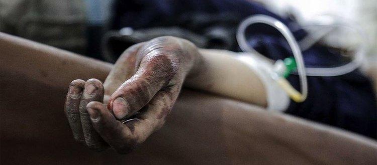Hama'da Esed rejimine bağlı hastanelerdeki serumlar zehir saçıyor