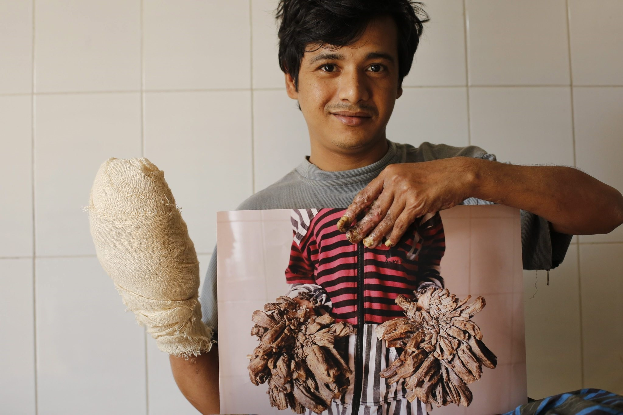 bul Bajandar, a patient diagnosed with epidermodysplasia verruciformis (EV), a rare skin disease, shows a photograph of his hands before operation. (EPA Photo)