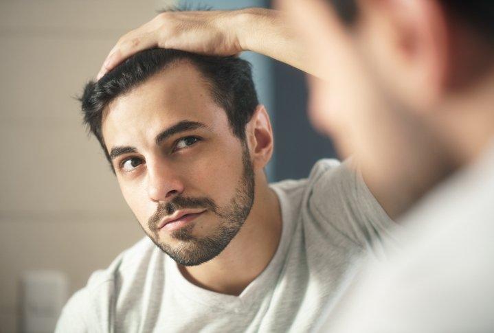 Kepekli saçlar için 8 bakım önerisi