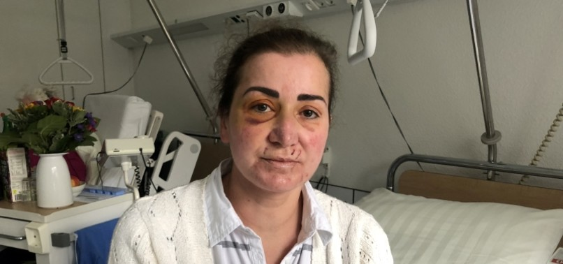 TURKISH WOMAN SEEKS JUSTICE FOR ASSAULT ON TRAM IN GERMANY