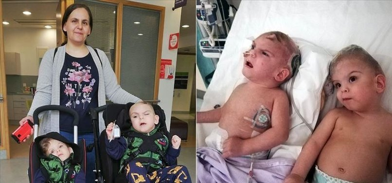 TURKISH CONJOINED TWINS TO RETURN AFTER SUCCESSFUL OP IN UK