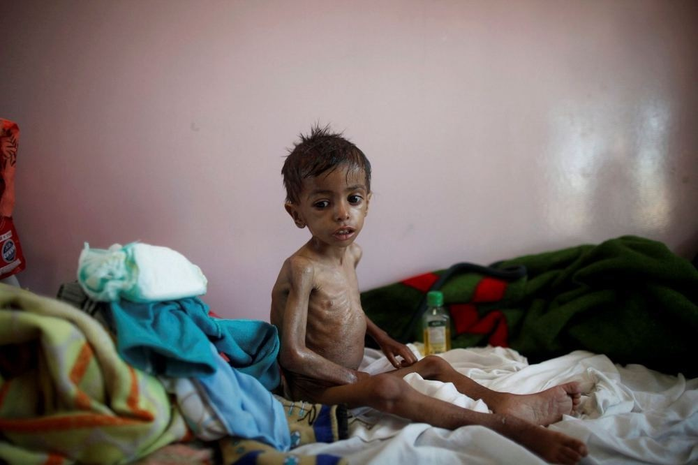 A malnourished boy sits on a bed at a malnutrition treatment center in Sanaa, Yemen, Oct. 30.