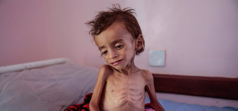 CORONAVIRUS HAS WORSENED GLOBAL HUNGER CRISIS: UN