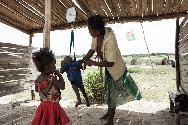 his file photo taken on March 4, 2015 shows a woman checking the weight of her baby at the health center of the village of Imongy, Madagascar (AFP Photo)
