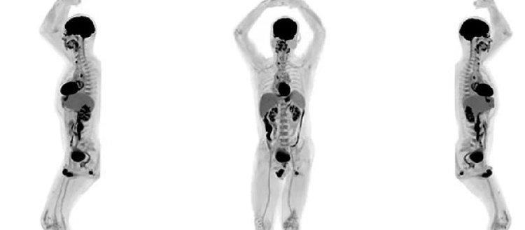 Tıpta çığır açacak görüntüleme cihazı