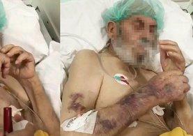 Skandal görüntülerdeki yaşlı hasta hayatını kaybetmiş