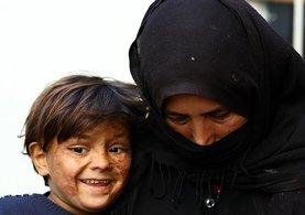 Suriyeli çocuk savaşın izlerini yüzünde taşıyor