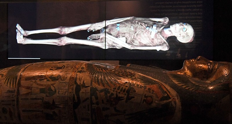 A three-dimensional image of a CT scan of an Egyptian mummy is projected above a sarcophagus (AFP Photo)