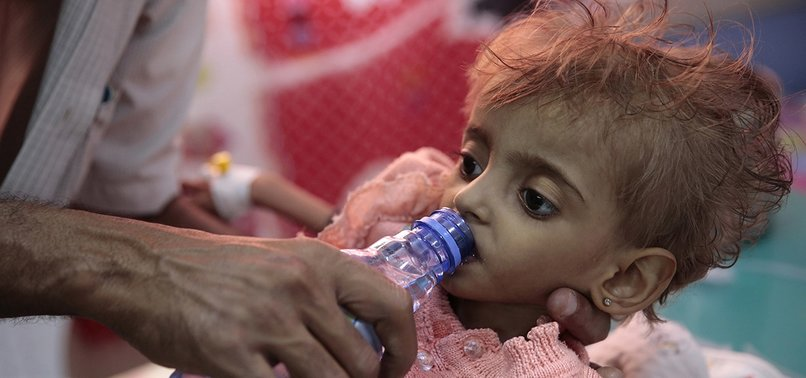 FOOD ENOUGH TO FEED 3.7M PEOPLE IN YEMEN AT RISK OF ROTTING, UN SAYS