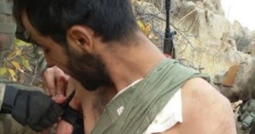 Yaralı teröristlere ilk müdahaleyi askerler yaptı
