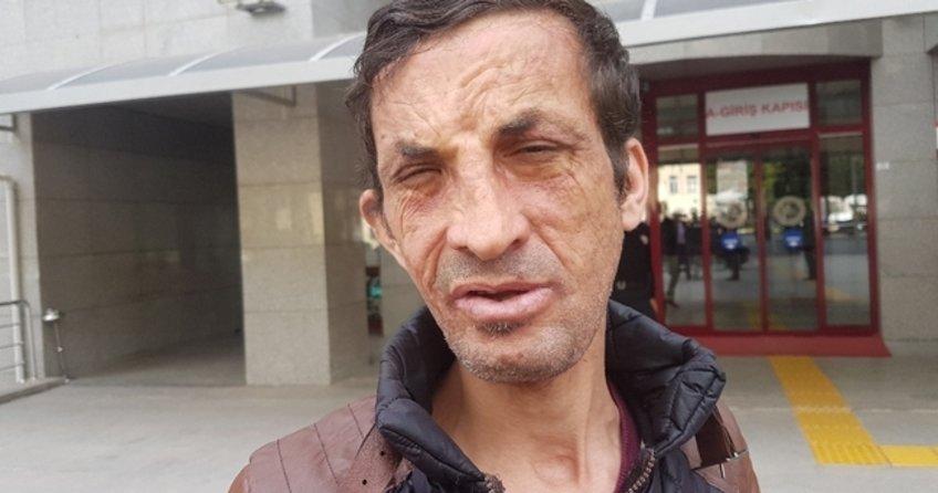 Türkiye'nin ilk yüz nakli olan Uğur Acar hakim karşısına çıktı