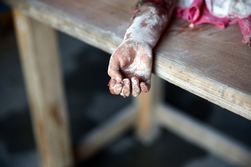 The hand of a dead child is pictured after shelling in the rebel held besieged town of Douma, eastern Ghouta in Damascus, Syria October 20, 2016. (REUTERS Photo)