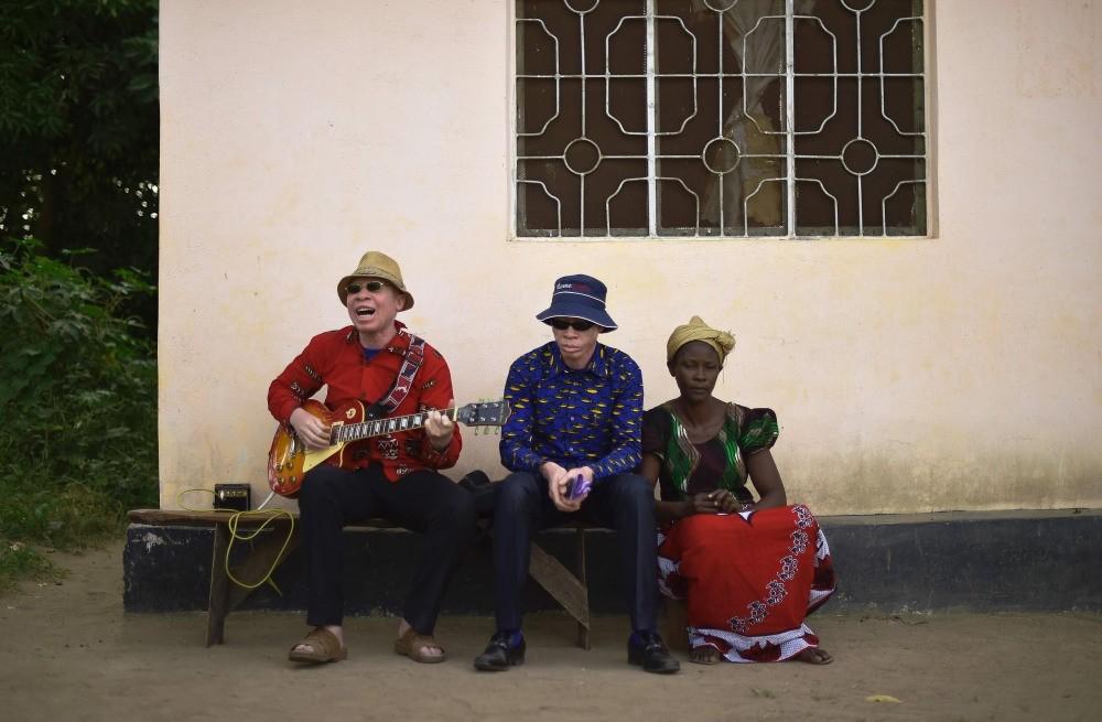 Albino singer King Shube (L) plays a guitar on Ukerewe Island.