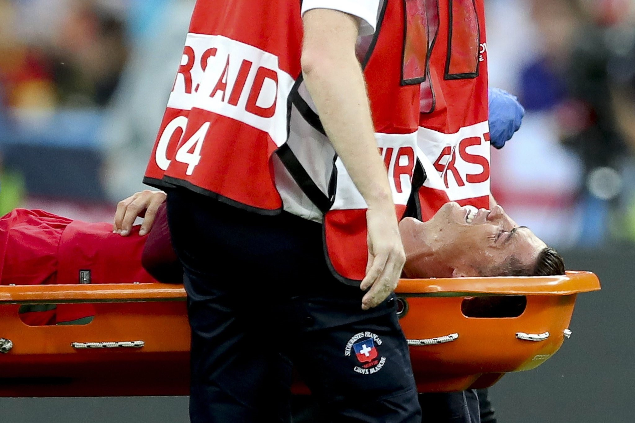 Cristiano Ronaldo of Portugal is stretchered off the pitch after being injured during the UEFA EURO 2016 Final match between Portugal and France at Stade de France in Saint-Denis, France, 10 July 2016. (EPA Photo)