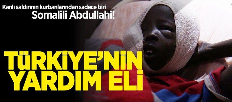 Türkiye Somali'nin yaralarını sarıyor