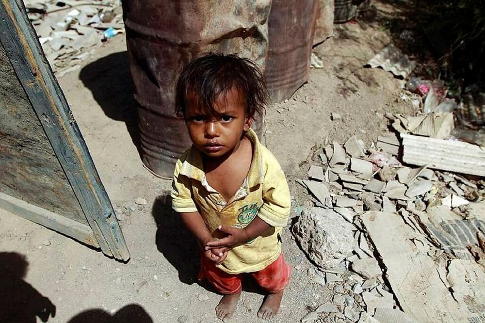 Yemeni children face life-threatening malnutrition, lack of access to health care and clean water due to the war.