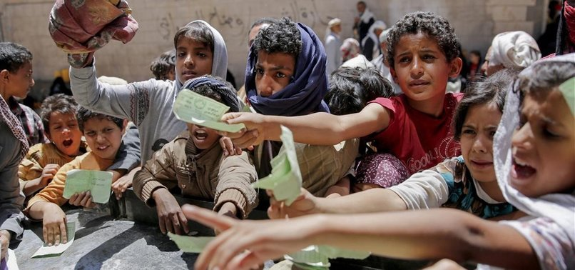 20 MILLION YEMENIS FOOD INSECURE DUE TO WAR: UN AGENCIES