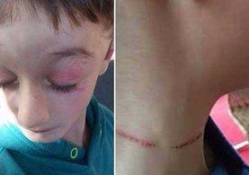 Almanya'da Türk çocuklara nazi işkencesi!