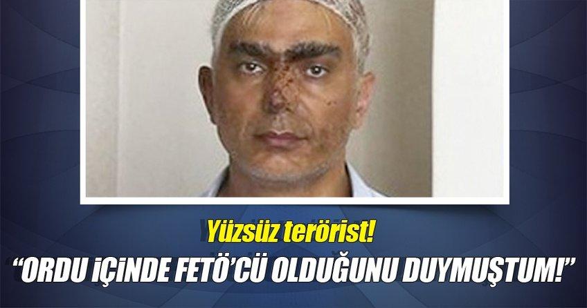 Yüzsüz Terörist!